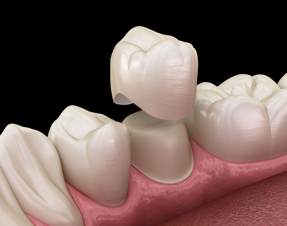 3 Dental Crown