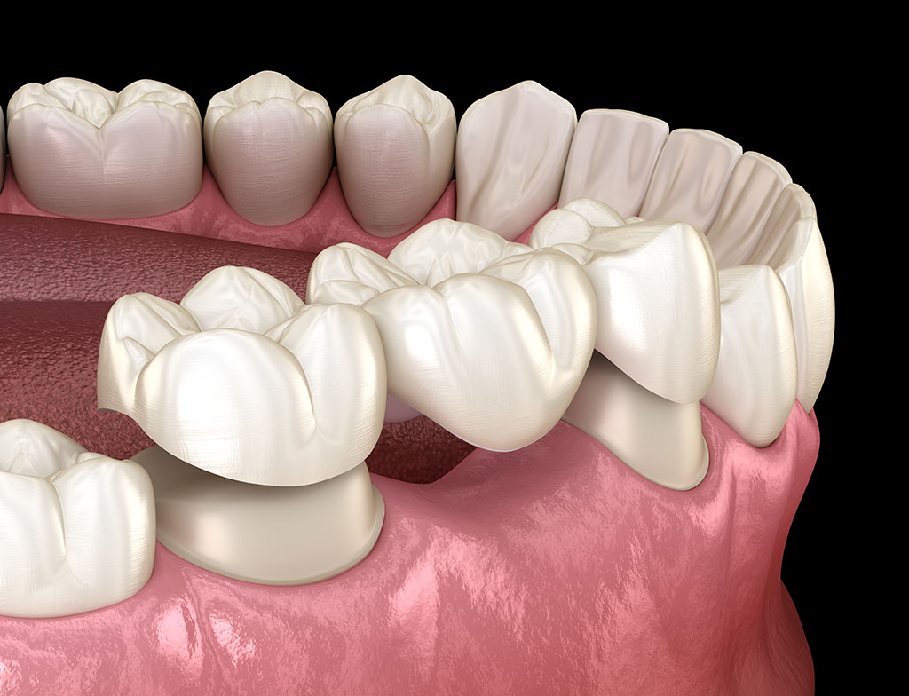4 Dental Bridge