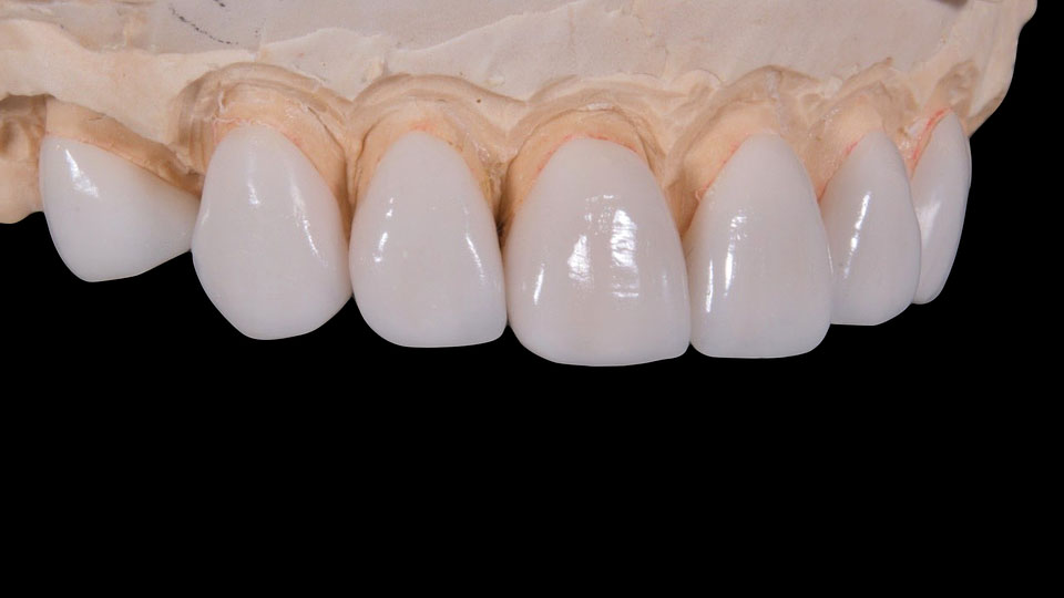 4 Dental Crown