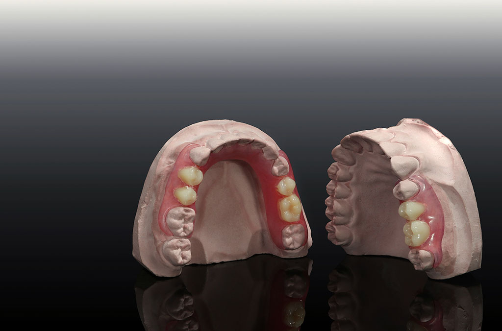 8 Affordable Dentures